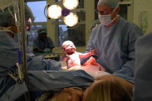 "Roger delivering a baby by ""natural"" caesarean."